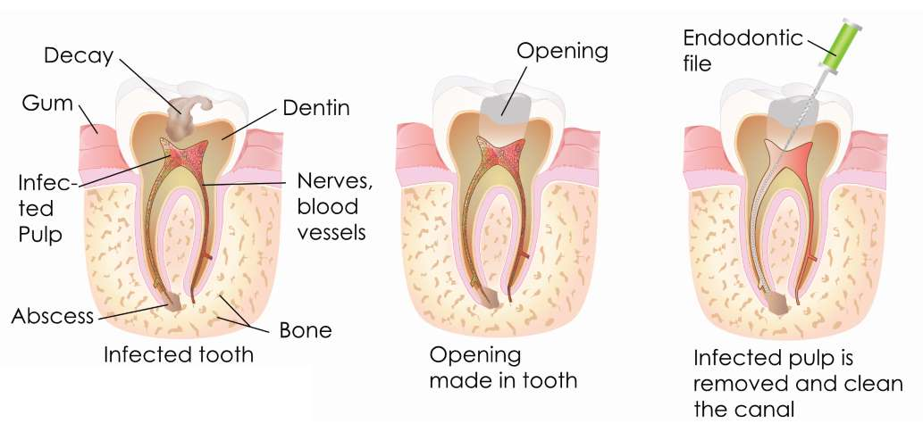 Root Canal Treatment in Carlisle